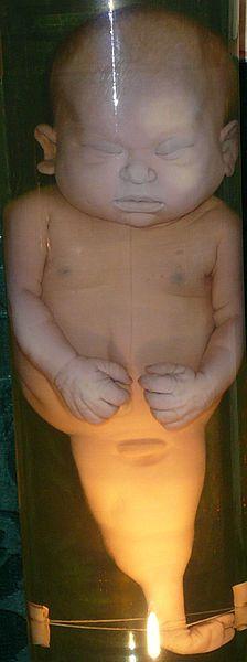 Ребёнок со сросшимися ногами вКунсткамере(Санкт-Петербург)  Сиреномелия(лат.sirenomelia;др.-греч.σειρήν—сирена+μέλος— часть тела, конечность) (син.:синдром русалки,симпус,сирена)— аномалия развития в виде сращения нижних конечностей. Конечности срастаются таким образом, что становятся похожи на хвост рыбы, а сам ребёнок нарусалкуилисирену(отсюда название). Также часто отсутствуют наружные половые органы, недоразвит желудочно-кишечный тракт и неперфорирован анус.  Встречается в одном случае на 100 000 родившихсяи, как правило, приводит к смерти через 1—2 дня после рождения из-за аномалий развития и функционированияпочекимочевого пузыря. Однако известны случаи, когда дети с сиреномелией (даже без хирургической операции) жили несколько лет. Так, американская девочка Шайло Пепин, страдавшая сиреномелией, прожила более 10 лет.