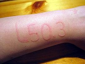 La manifestación del dermografismo en forma de un código de diagnóstico médico de la CIE-10